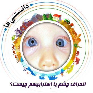 انحراف چشم یا اِسترابیسم چیست؟